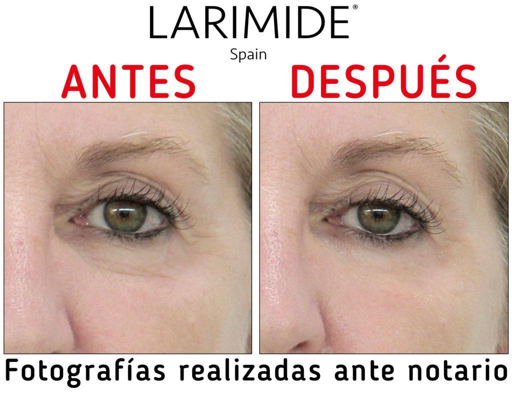 Larimide-efecto-lifting-inmediato-antes-despues-04