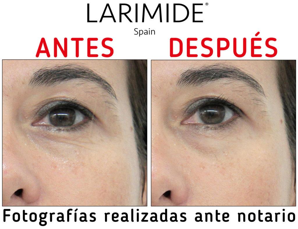 Larimide-efecto-lifting-inmediato-antes-despues-05