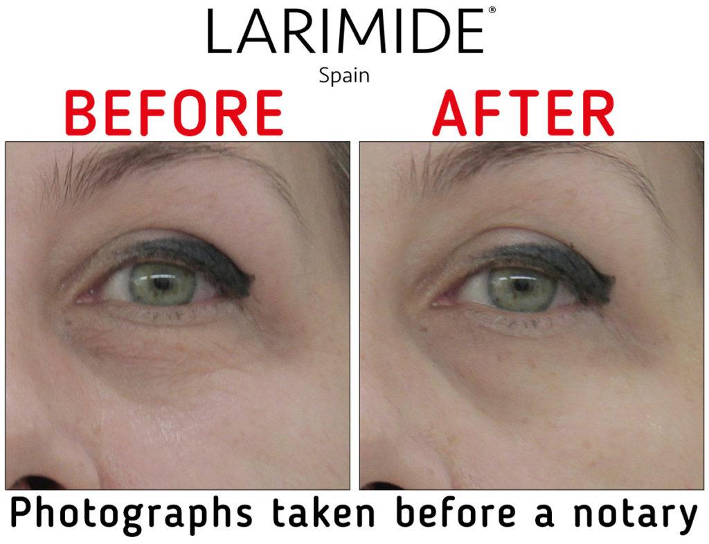 Larimide-efecto-lifting-inmediato-antes-despues-EN-03